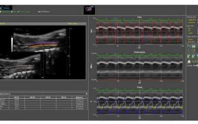 "Strumedical ha partecipato al webinar ""Measuring vascular stiffness in aging mice using high resolution vascular ultrasound"", Dicembre 2020, organizzato da Fujifilm Visualsonics."